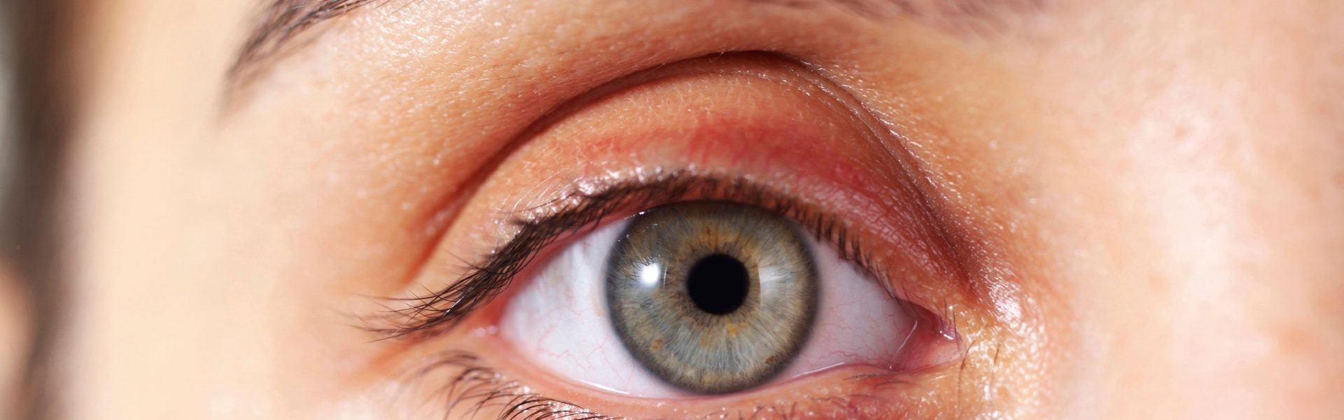 Do I Have Glaucoma Symptoms? What To Know About This Eye Disease